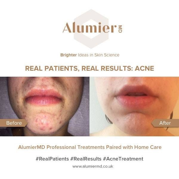 alumier acne before and after